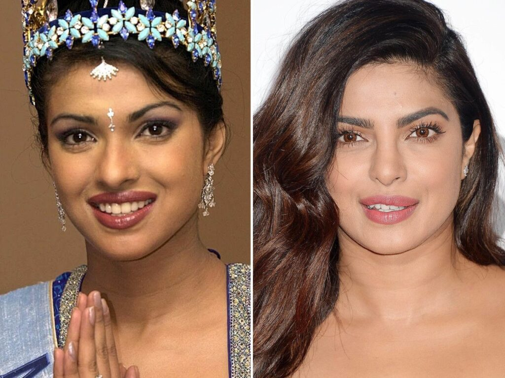 Lips Don't Lie! Popular Celebrities Who Made Splash With Lip Fillers   Pictures Inside